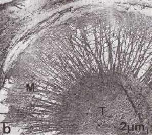 壁孔膜の電子顕微鏡写真